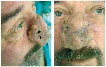 Pacient s epidermoidným karcinómom kože v teréne rinofymy.