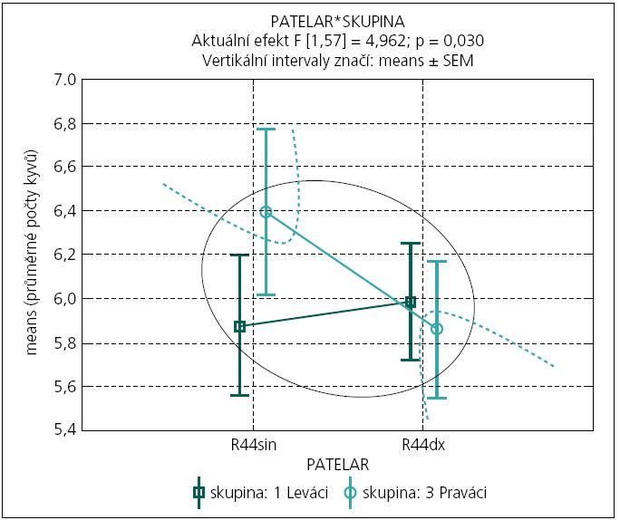 Graf 2e. Porovnání průměrného počtu kyvů (z 10 opakování pokusu) po reakci patelárního reflexu podle lokality (sin-dx) a laterální skupiny (Praváci-Leváci).  Hyperboly poukazují na statisticky významně rozlišitelné průměry u Praváků (na rozdíl od Leváků) na hladině spolehlivosti 95 %. Efekt křížové dominance DK (testovaný interakčním efektem 'sin-dx' a laterální skupiny) je statisticky významný na hladině spolehlivosti 95% (F[1,55] = 4,96; p = 0,030).