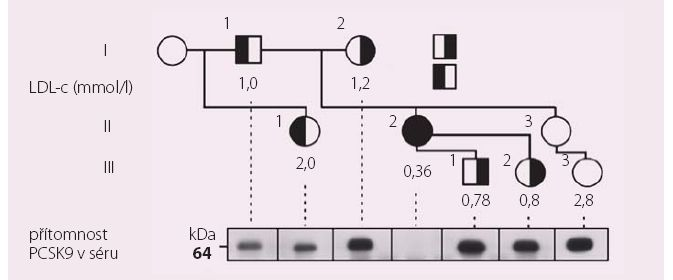 Rodokmen probandky (označena šipkou) s dvěma mutacemi snižujícími funkci PCSKS9.