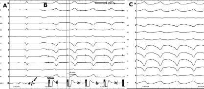 Stimulace do tzv. oblasti pomalého vedení reentry okruhu při sinusovém rytmu.