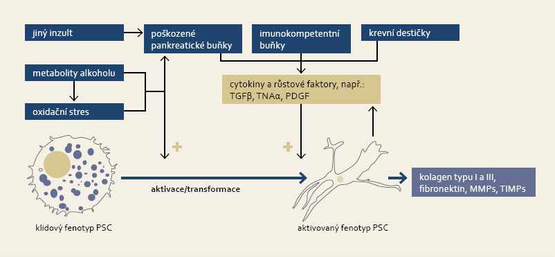 K aktivaci pankreatických stelárních buněk (PSC) dochází jak přímým vlivem metabolitů alkoholu a jimi indukovaným oxidačním stresem, tak i působením cytokinů a růstových faktorů emitovanými imunokompetentními buňkami a stromálními buňkami pankreatu při zánětu. Proces aktivace je morfologicky charakteristický změnou tvaru buňky a ztrátou tukových kapének. Fig. 4. Activation of pancreatic stellate cells (PSC) is triggered either by alcohol metabolites and subsequent oxidative stress, or by action of cytokines and growth factors secreted by immunocompetent and stromal pancreatic cells accompanying inflammation. Activation of PSC is accompanied by its morphological change and loss of fat droplets.