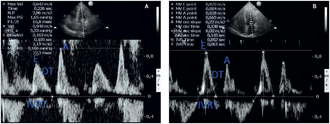 a – echokardiografické zobrazení poruchy diastolického plnění I. stupně (porucha relaxace) a prodloužení izovolumického relaxačního tlaku; b – normální obraz diastolického plnění a IVRT (z archivu autora)