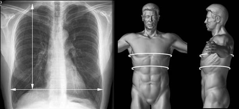 Měření horizontálního a vertikálního rozměru plíce na RTG snímku a obvod hrudníku v rovině prsních bradavek a dolní apertury hrudní k posouzení velikosti plic  Fig. 1. Measurement of horizontal and vertical lung sizes on x-ray. The chest circumference at the breast nipples level and at the level of the lower thoracic aperture for the lung size assessment