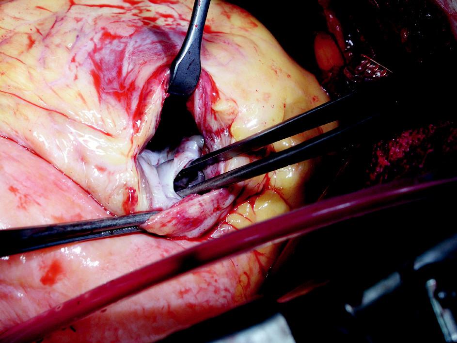 Peroperačný nález defektu hrotovej časti komorového septa Fig. 1. Intraoperative finding of a defect in the apical part of the ventricular septum