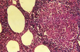 Zvětšená regionální mezenterická lymfatická uzlina 36letého pacienta s Whippleovou nemocí.