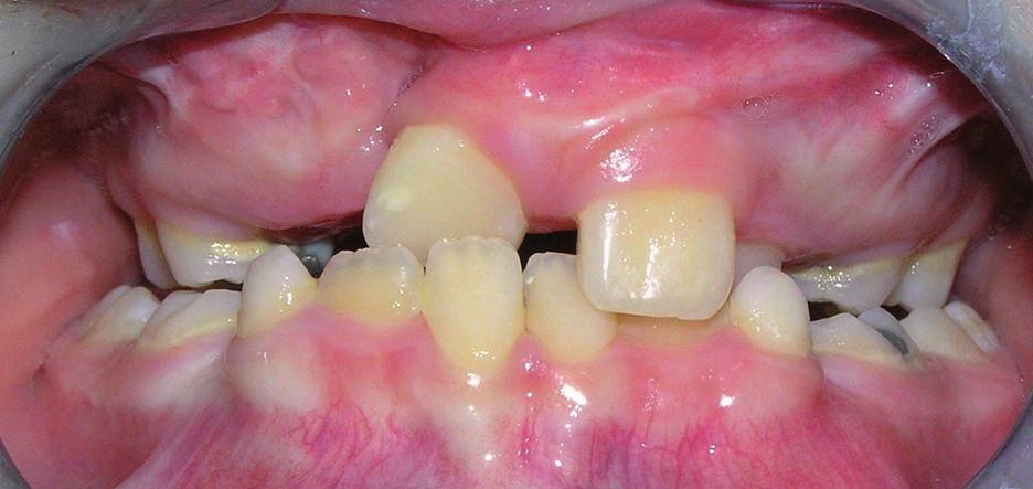 Skus chlapce s pravostranným celkovým rozštěpem ve věku 8 let a 5 měsíců. V laterálních úsecích chrupu je zkřížený skus, zuby 11 a 22 prořezaly do zákusu.