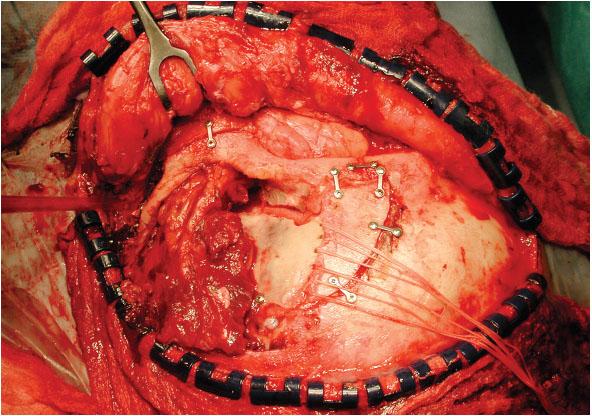 Obr. 2a. Chirurgie lební báze – orbitozygomatický přístup