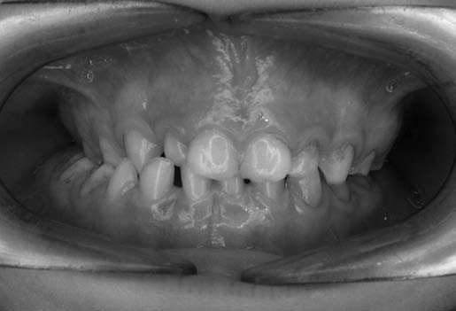 Pravostranne skrížený zhryz u pacienta č. 1 s núteným vedením sánky doprava v dôsledku zúženia horného zubného oblúka. Fig. 2. Unilateral crossbite at the right side in patient No. 1 with forced bite as consequence of upper arch compression.