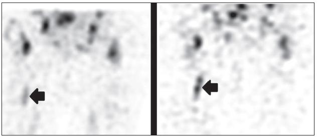 <i>Vyšetření značenými leukocyty, obrazy SPECT časné (vlevo) a pozdní po 24 hod (vpravo).</i>