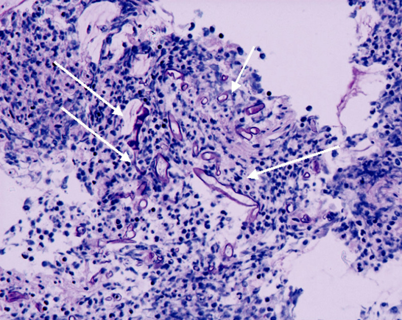 Histologický nález biopsie, šipky označují myotické hyfy