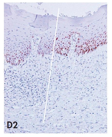 Biopsie vulvy zastihující komplexní HPV negativní lézi tvořenou prekancerózou (d-VIN) v přímé kontinuitě s vulvarni dermatózou (LSC) a dlaždicobuněčným karcinomem (SCC). Imunohistochemické vyšetření antigenu p53 demonstruje téměř difuzní pozitivitu jader nádorových buněk v SCC a pozitivitu buněk bazálních vrstev epitelu d-VIN se suprabazilární extenzí. Povšimněte si též silné jaderné pozitivity p53 v bazálních a suprabazilárních partiích LSC, která je v přechodové zóně intenzivnější než pozitivita v d-VIN. Nález příkladem z praxe demonstruje problematickou specificitu imunohistochemického vyšetření p53 pro diagnózu d-VIN (blíže diskutováno v textu).  A – kontinuálni přechod LSC – d-VIN – SCC s vyznačením jednotlivých zón (20x); B1 – SCC (HE, 40x), B2 – SCC (p53, 40x); C1 – d-VIN (HE, 100x); C2 – d-VIN (p53, 100x); D1 – přechodová zóna mezi LSC a d-VIN (HE, 100x); D2 – přechodová zóna mezi LSC a d-VIN (p53, 100x)