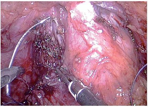 Opich komplexu dorsální vény Fig. 4. The ligation of a dorsal vein complex