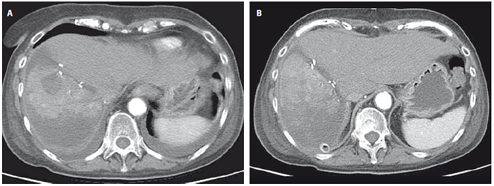 CT image showing the liver four days after ALPPS where further right lobe atrophy and necrosis is seen with no significant contralateral hypertrophy (A) after 14 days where signifi cant left lobe hypertrophy is noticed (B).