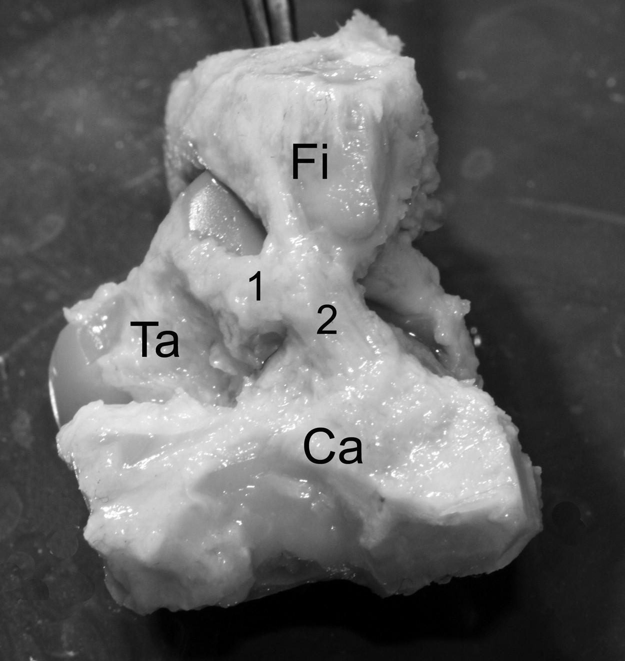 Pohled na laterální plochu hlezenního kloubu v prenatálním období. 1 – lig. fibulotalare ant. 2 – lig. fibulocalcaneare, Ca – calcaneus, Fi – fibula, Ta – talus, Ti – tibia