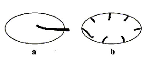 Schéma dvou základních typů prokrvení uzlin: a - hilový (centrální) typ, b - periferní typ.