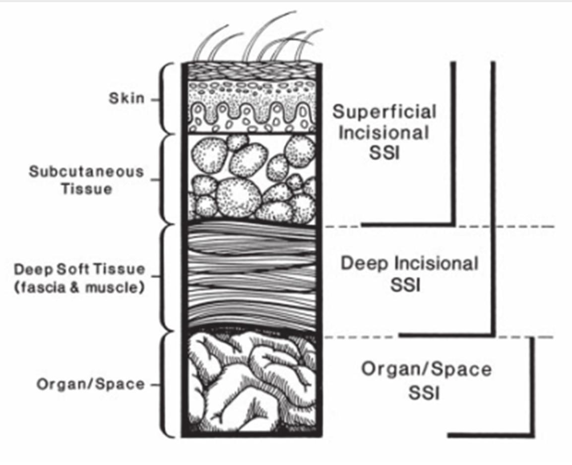 Schéma klasifikace IMOV [11] Fig. 1: Schema of classification SSI [11]