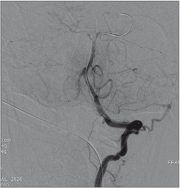 Rekanalizace bazilární tepny po 35 minutách insonace a intraarteriální trombolytické léčby systémem Eko-Sonic SV<sup>TM</sup>.