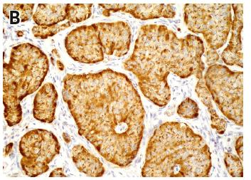 """Obr. 1 Histologický obraz a imunohistochemická exprese chromograninu ve tkáni NET 1A. NET s přítomností pravidelných polygonálních buněk, s uniformními okrouhlými jádry s jemně granulárním chromatinem (""""sůl a pepř""""), uspořádaných do solidně trabekulárních formací (barvení hematoxylin-eozin, zvětšeno 400krát) 1B. Difuzní silná cytoplazmatická exprese neuroendokrinního markeru chromograninu (IHC, zvětšeno 200krát)"""