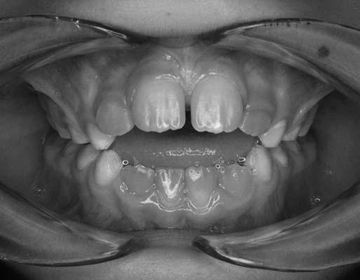 Otvorený zhryz u pacienta č. 2. Fig. 4. Open bite in patient No. 2.