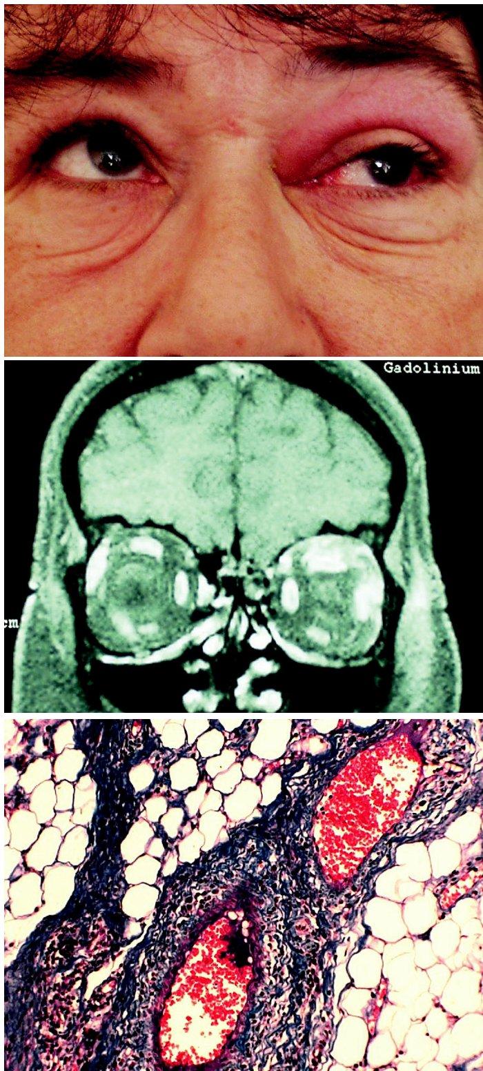a. Prosáknutí horního víčka vlevo s omezenou elevací bulbu b. MR: tumor pod stropem pravé očnice s infiltrací horního přímého svalu c. Histologie: Vaskulitida, parafinový řez, barvení modrý trichrom, zvětšení 125krát