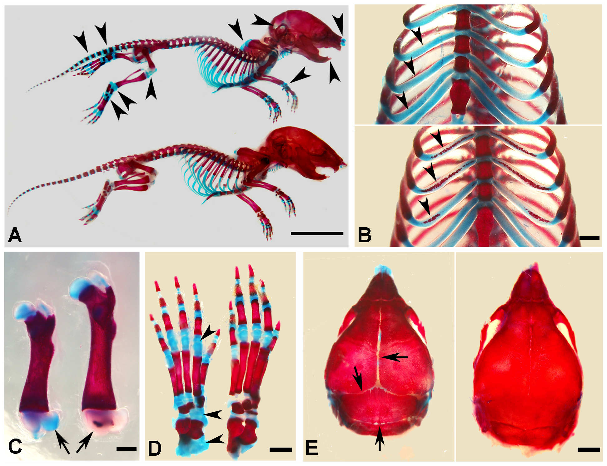 Alizarin red/alcian blue staining of the skeleton in the 1-week-old <i>Sox2-Cre-Fam20c</i>-cKO mice.