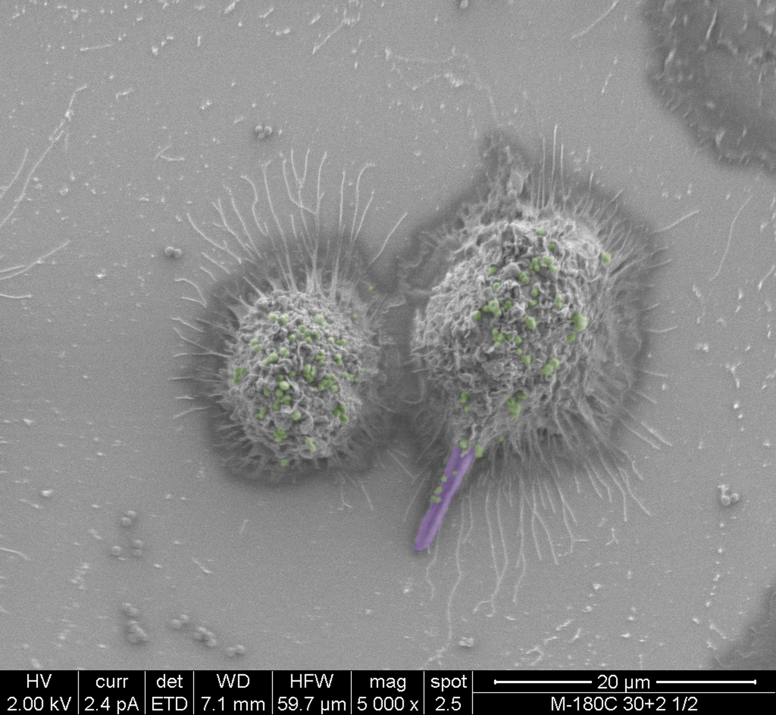 False-colored scanning electron micrographs depicting the co-phagocytosis of <i>C</i>. <i>albicans</i> and <i>S</i>. <i>aureus</i> by murine macrophages.