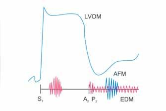 Schematické vyobrazení fyzikálních nálezů u chronické lehké až těžké aortální regurgitace. Hyperdynamický apikální impulz levé komory je výsledkem chronického objemového přetížení. Snížená intenzita první ozvy je způsobena zvýšeným diastolickým tlakem v levé komoře a předčasným závěrem mitrální chlopně; šelest Austina Flinta.