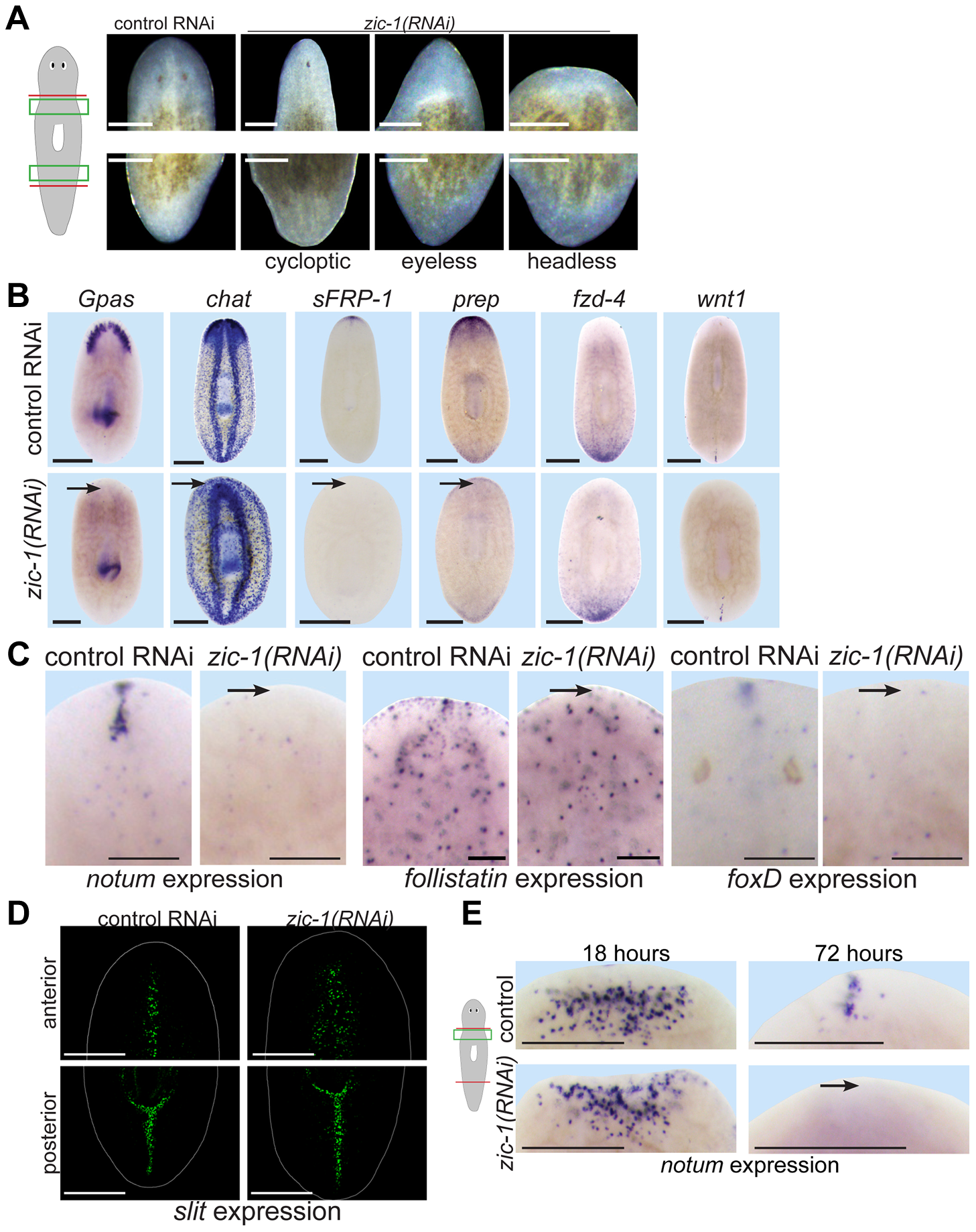 <i>zic-1</i> is required for anterior pole formation and head regeneration.