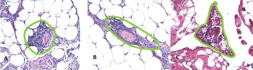 Stimulované mliečne škvrny demonštrujúce okrúhly A), oválny B) a nepravideľný C) tvar; súčasťou každej mliečnej škvrny sú kapiláry Fig. 2: Stimulated milky spots demonstrating round A), oval B) and irregular C) shape; all milky spots contain some capillaries