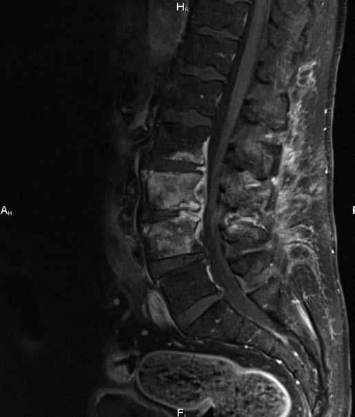 Sagitální T1 vážený obraz se spektrální saturací tuku po aplikaci kontrastní látky prokazuje výrazně zvýšenou patologickou opacifikaci kostní dřeně postižených obratlů a známky zánětlivé infiltrace předního epidurálního prostoru (epiduritidy).