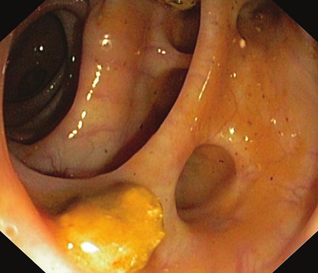 Těžší divertikulóza na colon sigmoideum (jsou patrné četné objemné divertikly, v luminu tračníku je z divertiklu vypadlý fekolit)