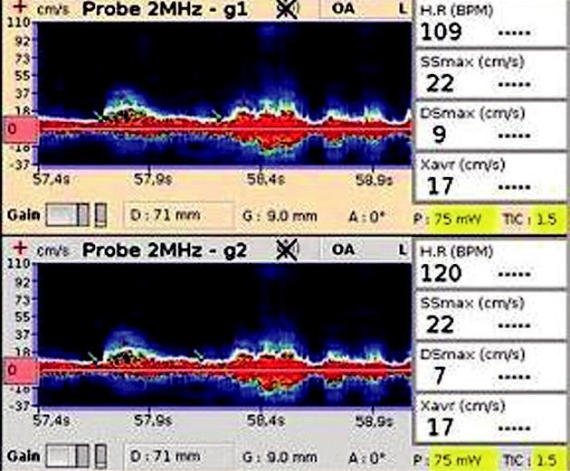 TCD záznam a karotickém siphonu l.dx. Zobrazuje nízkou maximální systolickou a diastolickou rychlost (SSmax a Dsmax), nízkou průměrnou maximální rychlost (Xavr).