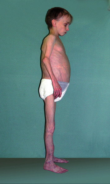 Obr. 1–2. Vzhled pacienta s Mulibrey syndromem.