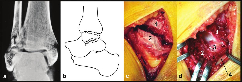 Zlomenina vnitřního kotníku, pravé hlezno a – rtg snímek, b – schéma, c – peroperační foto, d – peroperační foto, stav po odklopení vnitřního kotníku distálně, 1 – distální tibie, 2 – mediální kotník, 3 – hluboká tibiotalární vlákna deltového vazu, 4 – šlacha m. tibialis post.