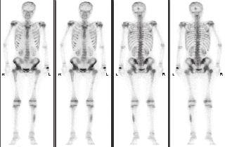 Třífázová scintigrafie skeletu metodou celotělové scintigrafie v přední a zadní projekci. Třetí (kostní fáze). Nález skvrnitě zvýšeného vychytávání v axiálním skeletu, v kalvě okcipitálně, v obou kyčelních kloubech a v levé fibule - vzhledem k věku pacientky výrazně atypický obraz.