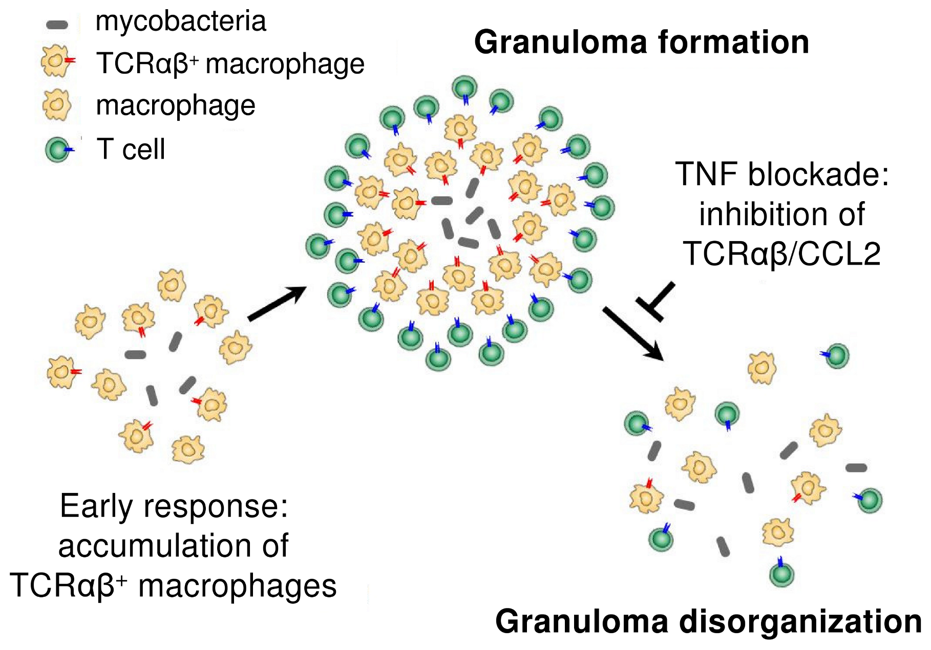 Proposed role of the macrophage recombinatorial TCRαβ in the formation of the tuberculous granuloma and its regulatory interactions with TNF and CCL2.