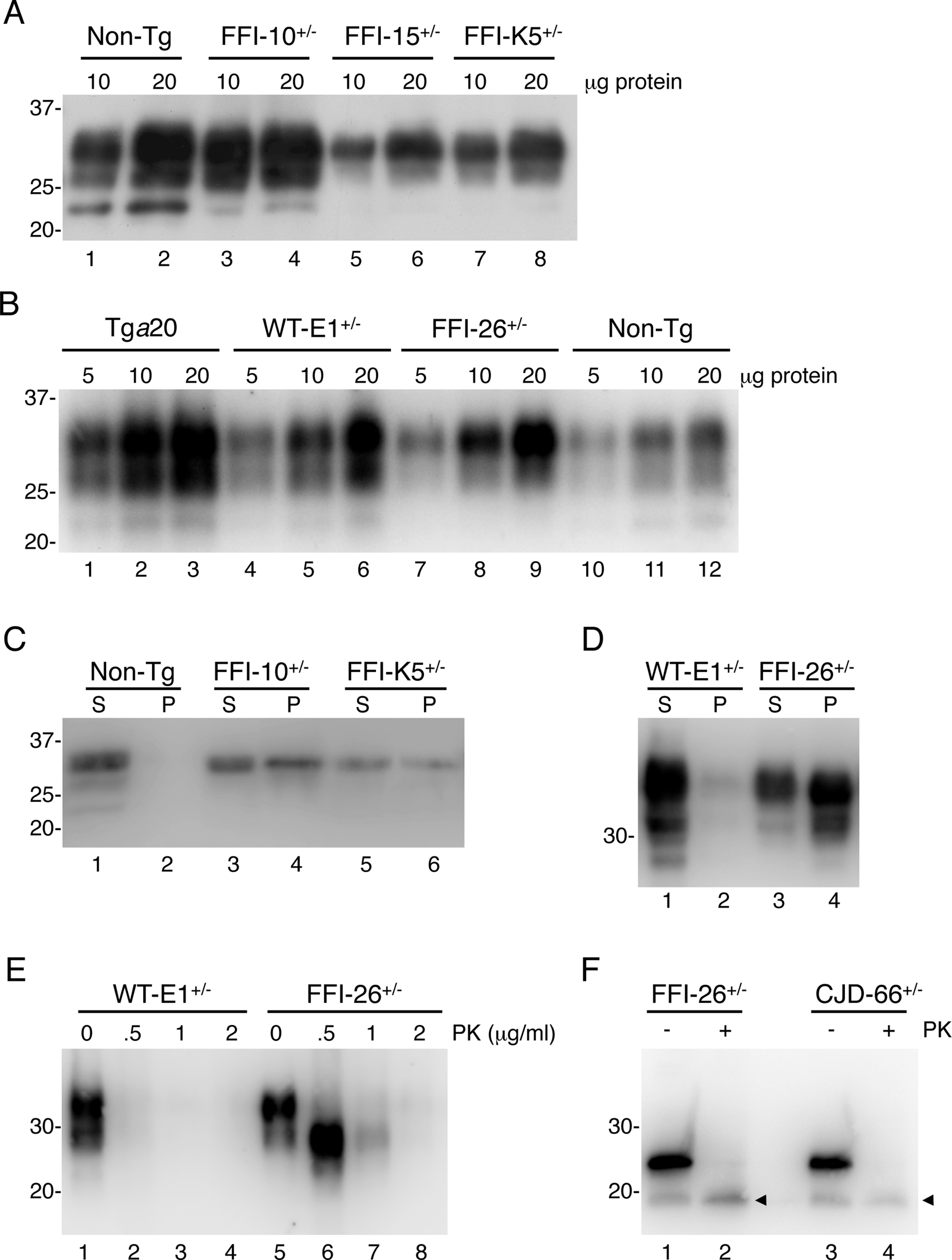 Mutant PrP in the brains of Tg(FFI) mice is insoluble and mildly protease-resistant.