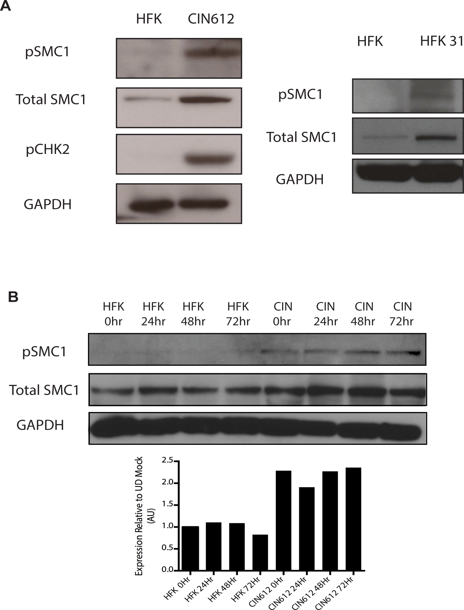 Levels of total SMC1 and pSMC1 are increased in HPV positive cells and remain high upon calcium-induced differentiation.