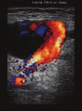 Duplexní ultrazvukové (UZ) vyšetření: dutina pseudoaneuryzmatu plněná arteriální krví.