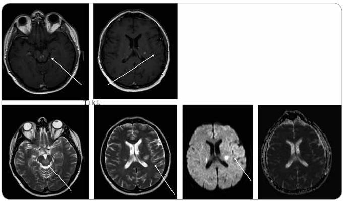 MR zobrazení mozku z 22. 1. 2009, tedy před léčbou. Na MR je viditelné postižení kmene, mozečku a bílé hmoty supratentoriálně, ložiska T1 hypo, T2 hyperintenzní, postkontrastně se sytící, restrikce difuze na DWI , bez korelace na ADC.