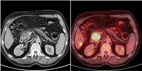 Axiální projekce hlavy pankreatu na CT vyšetření po podání kontrastní látky nitrožilně (vlevo), fúze téhož obrazu s <sup>18</sup>FDG-PET vyšetřením (vpravo). Karcinom hlavy pankreatu o průměru více než 2 cm, drobná metastáza v 6. segmentu pravého laloku jater. Rozsah choroby nelze na CT spolehlivě rozlišit. Fig. 1. Axial projection of head of pancreas on CT scan after IV administration of contrast agent (left), fusion of the same image with <sup>18</sup>FDG-PET scan (right). Carcinoma of head of pancreas with the diameter of over 2 cm, small metastasis  in the sixth segment of the right hepatic lobe. The extent of the disease cannot be reliably distinguished on CT scan.