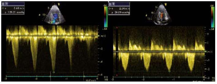 Obr. 2. Gradient ve výtokovém traktu levé komory časně po zátěži (vlevo) a v klidu (vpravo).