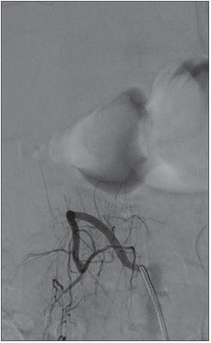 DSA – nástřik a. lumbalis vpravo, bez plnění AVM po embolizaci.