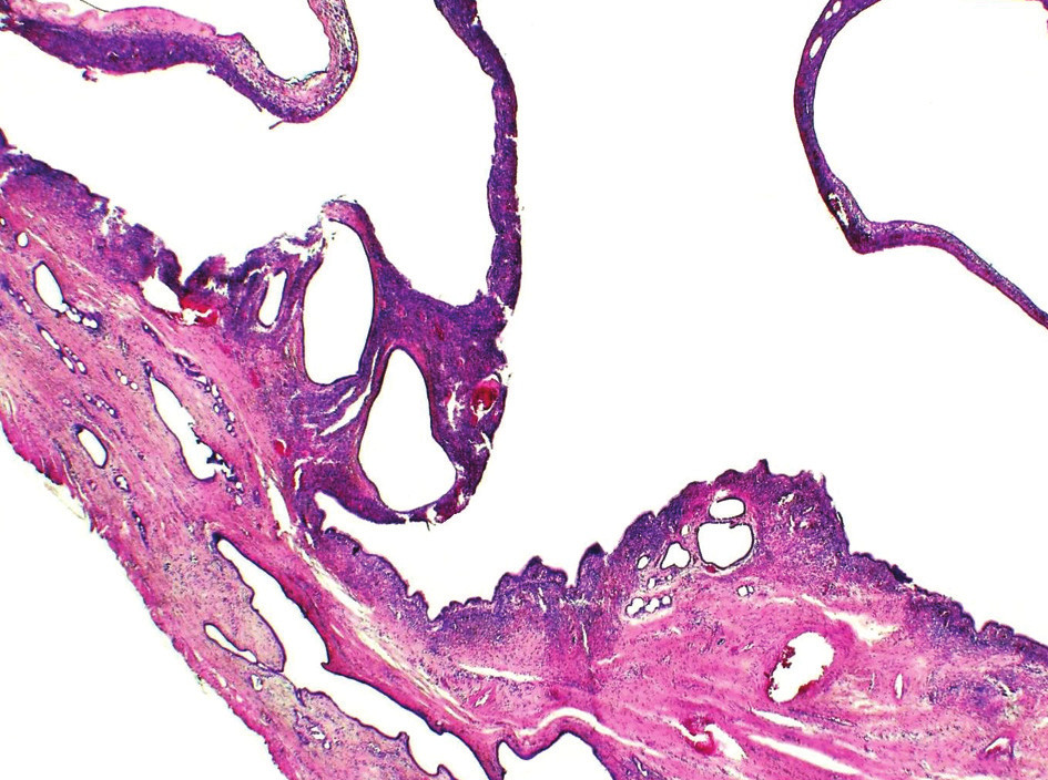 Při malém zvětšení je viditelní multilokulární stavba cystadenomu (HE20x) Fig. 1. At low magnification a multilocular structura of cystadenoma is distinelly visible