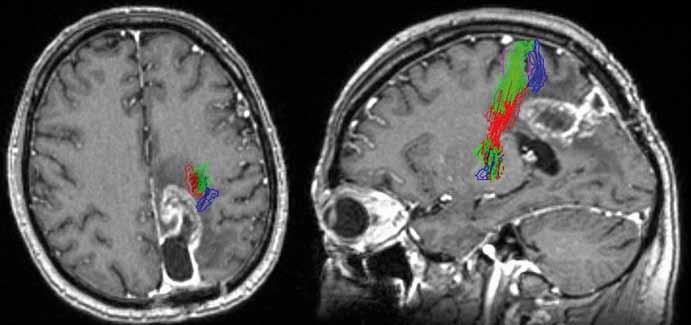 Recidiva glioblastomu parieto-okcipitálně vlevo a jeho šíření směrem k pyramidové dráze T1W MR + DTI (červená – noha, zelená – paže/ruka, modrá – obličej). Fig. 1. Recurrence of glioblastoma multiforme parieto-occipitaly involving left hemisphere and spreading towards the pyramidal tract T1W MR + DTI (red – foot, green – arm/hand, blue – face).