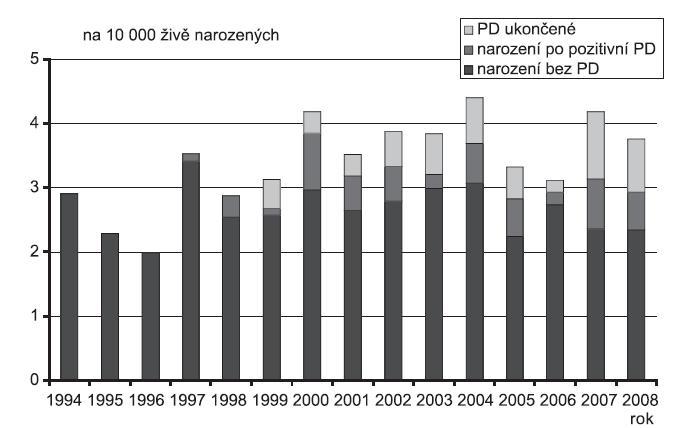 Incidence Ventrikuloarteriální diskordance (Q 20.3) v ČR, 1994 - 2008, Zdroj: Národní registr vrozených vad – ÚZIS, 2009