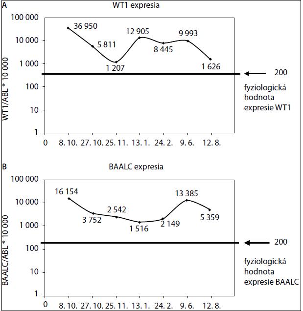 Zmena expresie génu WT1 (A) a BAALC (B) v reálnom čase počas liečby pacienta s AML-M5.
