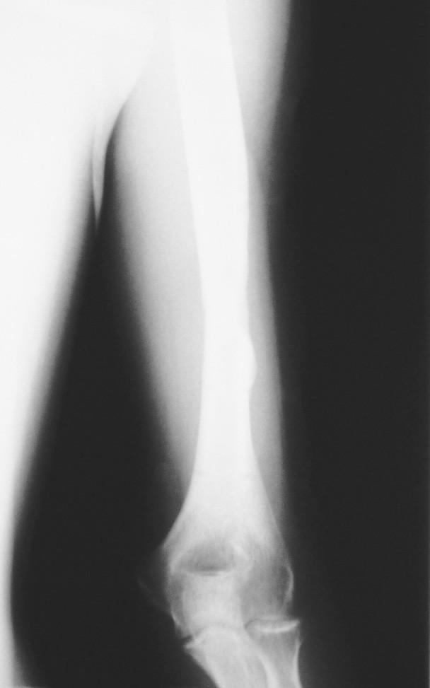 Obr. 6a–c. Ztrátová fraktura humeru na zevní fixaci (a), postup hojení po 8 týdnech (b), kompletní RTG zhojení po 14 týdnech (c) Fig. 6a–c. Loss bone humeral fracture on external fixation (a), healing progress 8 weeks later (b), complete bone healing in 14 weeks (c)