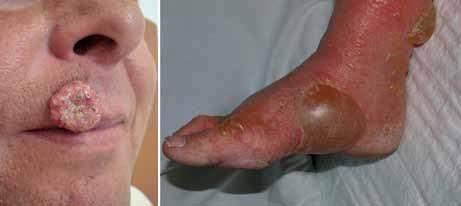 Keratoakantom a bulózní dermatitida jako kožní nežádoucí účinek terapie vemurafenibem.