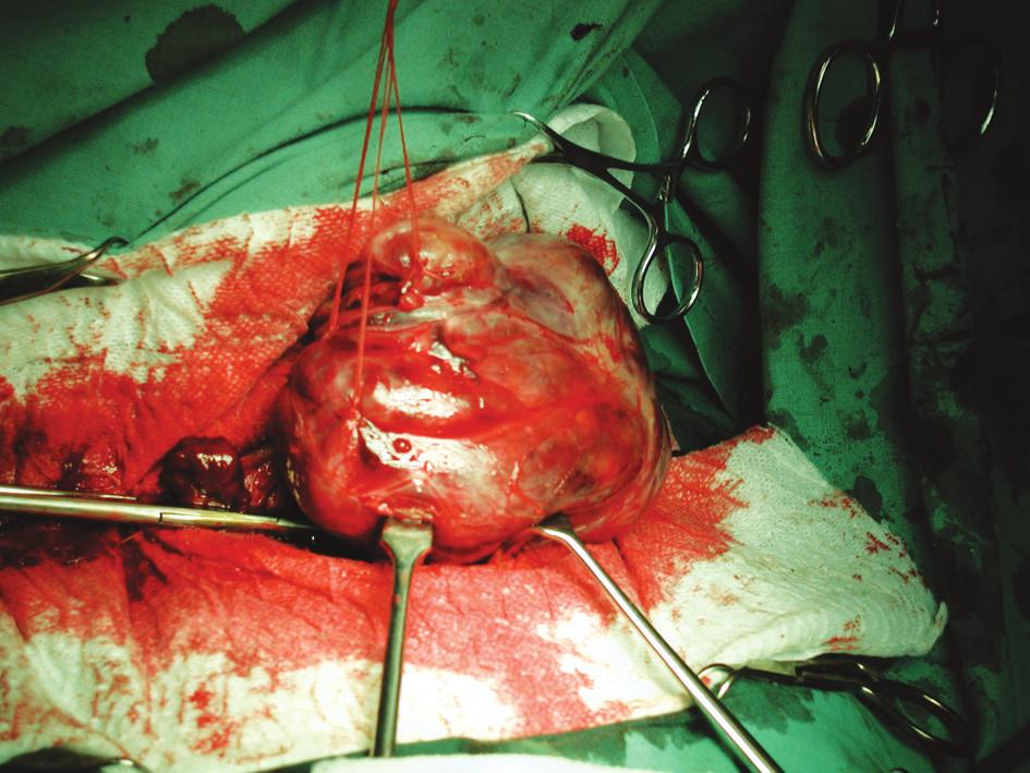 Peroperační foto – odpreparovaný rozsáhlý uzel, který komprimoval tracheu. Fig. 1. An intraoperative photograph – dissected large thyroid nodule that compressed the trachea